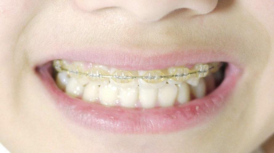 矯正歯科始まりました